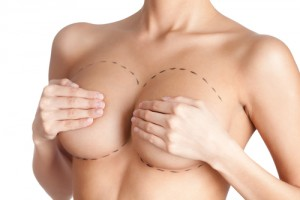 Breast Implants Des Moines