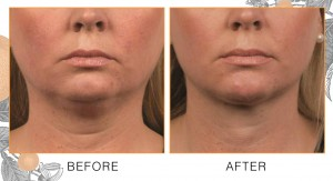chin-neck-coolsculpting