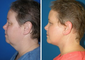 coolsculpting-before-after-chin