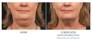 Des Moines CoolSculpting Before After