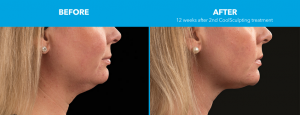 chin-cool-sculpting-before-after